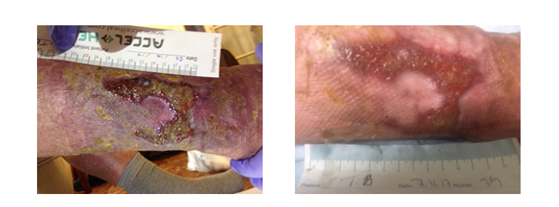 Accel Heal stimulates healing in leg ulcers